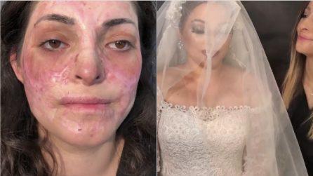 Le cicatrici le ricoprono il volto: il truccatore realizza il suo più grande sogno