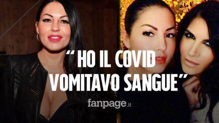 """Eliana Michelazzo dimessa dall'ospedale: """"Ho il Covid, vomitavo sangue. Che spavento"""""""