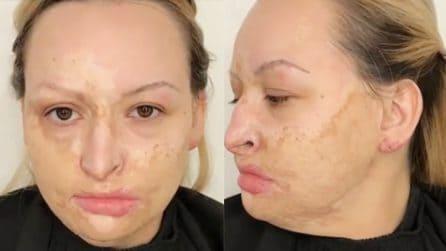 Il suo volto è ustionato, non si riesce più a vedere bella: la make up artist realizza il suo sogno
