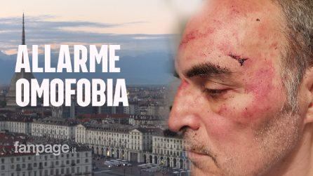 """Torino, gay picchiato da gruppo di condomini: """"Urlavano ricchione ti ammazziamo, nessuno mi aiutava"""""""