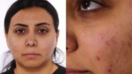 L'acne non le permette di vedersi bella: la trasformazione è stupenda