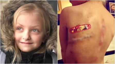 """""""Con quelle cicatrici sembri un mostro"""": la storia da brividi di Claire, guarita dal cancro a 8 anni"""