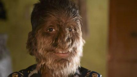 Il ragazzino con la sindrome da lupo mannaro: viso completamente coperto da peli