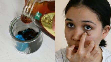 Come ridurre le occhiaie con 3 ingredienti naturali: il metodo efficace
