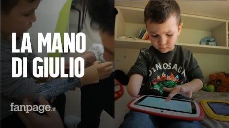 """Giulio è nato senza un braccio e ora ha una protesi: """"Ma lo Stato non passa le nuove mani bioniche"""""""