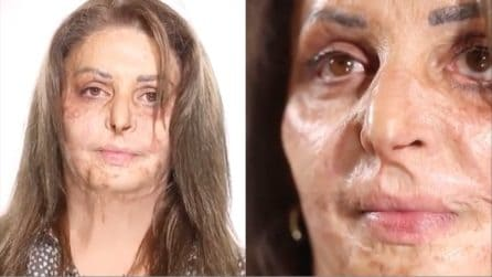 Il viso di questa donna è segnato da cicatrici e bruciature, vuole sentirsi bella: la trasformazione