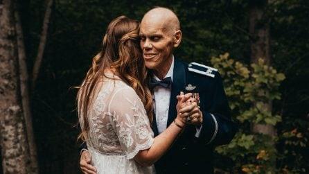 Papà malato di cancro balla con la figlia promessa sposa per l'ultima volta prima del matrimonio