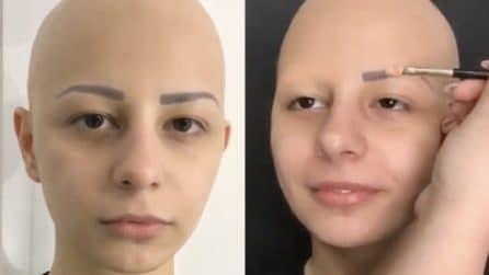 Chiede che la malattia possa sparire per un giorno: la commovente trasformazione