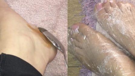 Talloni screpolati: il rimedio casalingo per averli morbidi e lisci