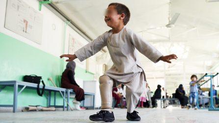 Bimbo afghano balla in ospedale con la nuova protesi. La storia Ahmad Rahman commuove il mondo