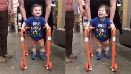 Il piccolo è nato con un problema alle gambe: i suoi primi passi