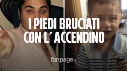 Bambino di due anni ucciso a Milano, piedi ustionati con l'accendino