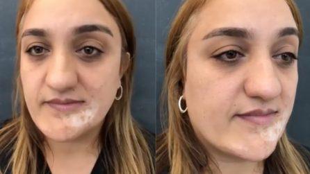 Non si è mai sentita bella a causa delle cicatrici sul suo volto: il make up artist la trasforma
