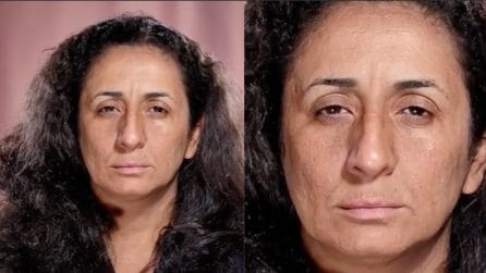 Ha soli 35 anni, ma i segni dell'età e la stanchezza le segnano il viso: la trasformazione