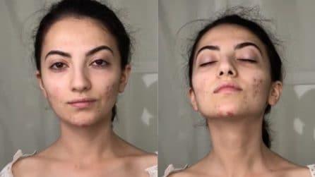 Vuole coprire le tracce dell'acne: la trasformazione straordinaria dopo il make up