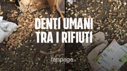 Giallo dei denti a Roma: a centinaia sono stati trovati in strada tra i sacchetti dell'immondizia