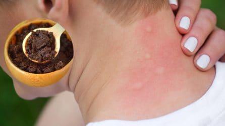 5 modi per allontanare le zanzare con ingredienti naturali che avete in casa!
