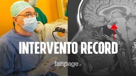 Intervento record a Firenze: rimuovono malformazione dal cervello di un bambino con un robot