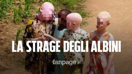 La strage dei bimbi albini in Mozambico: fatti a pezzi e venduti al mercato nero