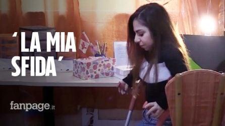 """La storia di Anna, 28enne affetta da artrite: """"La mia sfida al mattino è mettere i piedi per terra"""""""