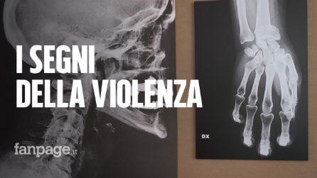 """Roma, in mostra le lastre delle donne vittime di violenza: """"I segni delle botte tra le mura di casa"""""""