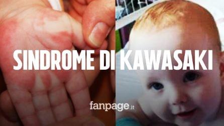 Sindrome di Kawasaki: morto a 8 mesi Alex, la vittima più giovane del Regno Unito