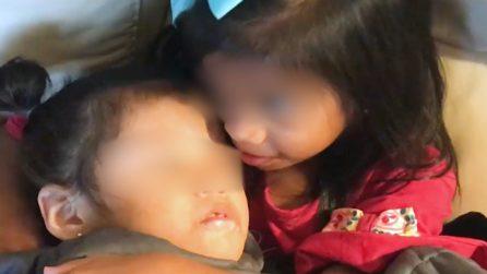 I genitori le abbandonano perché disabili: le bambine vengono adottate dalla stessa famiglia