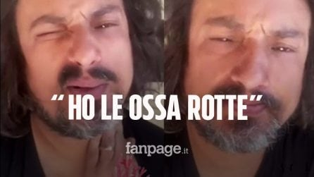 """Alessandro Borghese su Instagram: """"Ho il Covid, sono tutto acciaccato"""""""