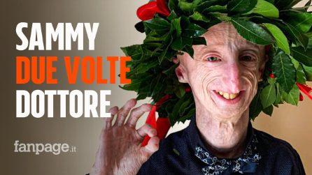 Sammy Basso, seconda laurea per il giovane affetto da progeria: è dottore in Molecular Biology