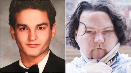 È il primo al mondo ad aver ricevuto un trapianto di volto e mani: l'incredibile storia di Joe DiMeo