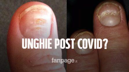 Questi segni sulle unghie possono indicare che hai avuto il Covid: cosa sono le linee di Beau