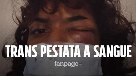 """Trans aggredita in un locale a Catania: """"Pestata a sangue, nessuno mi ha aiutata"""""""