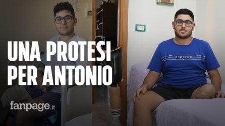 Ha un tumore raro e aggressivo e perde una gamba. Antonio sogna una protesi, ma costa 65 mila euro