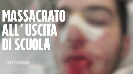 """Emanuele pestato a sangue all'uscita di scuola: """"Che gusto c'è a rovinare la vita delle persone?"""""""
